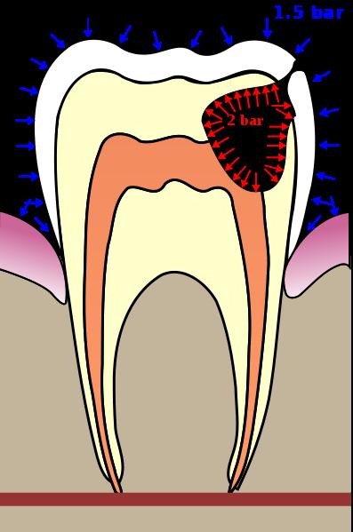 Teeth graphics